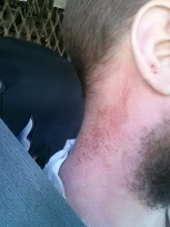 Here's my neck after landscaping for a few days. Very painful